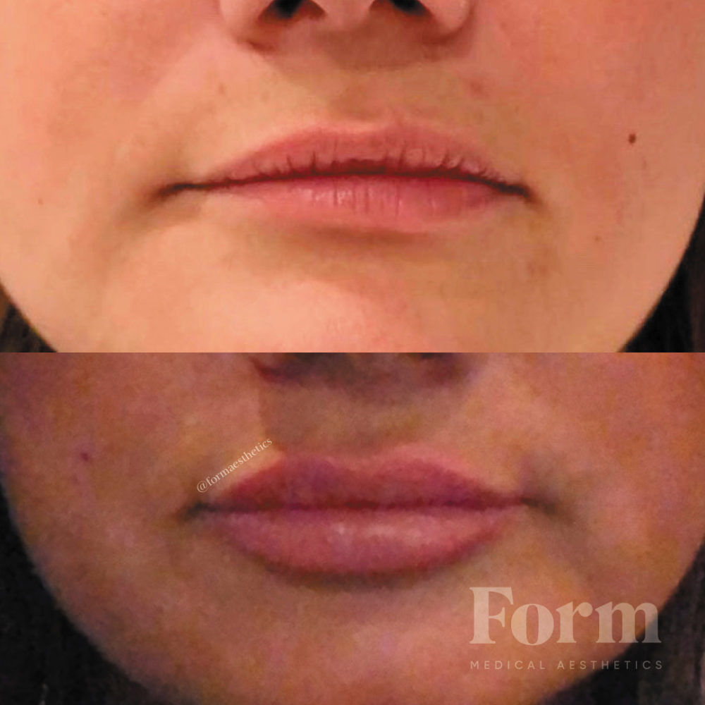 Lip Filler Correction Of Asymmetry