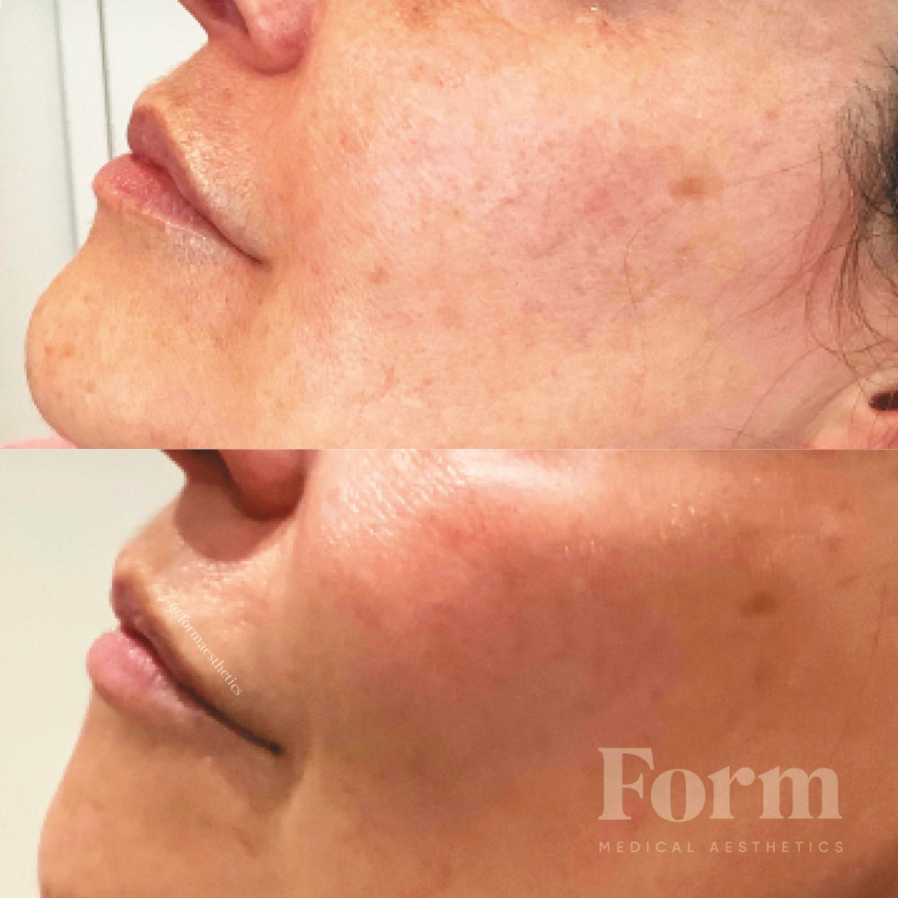 Microneedling with PRP AlumierMD rejuvenating kit